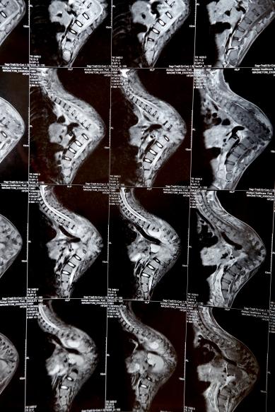 _Daulati MRI
